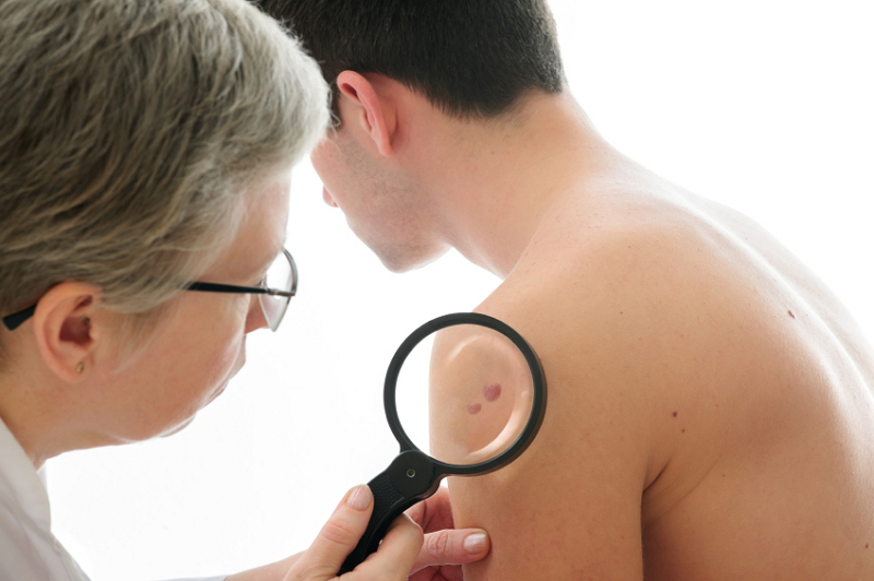 25 (HealthDay News) -- Psoriasis can be a maddening disease 2