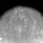 New Law Impacts Mammogram Providers