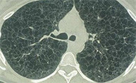 New Clinic Researches Rare Lung Disease