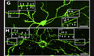 Brain Cells Lost to Huntington's Disease Regenerated