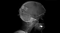 x-ray of brain with transmitter implanted