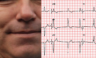 man's face next to an ECG strip