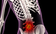 illustration of a skeleton with red area to indicate pain in lower back
