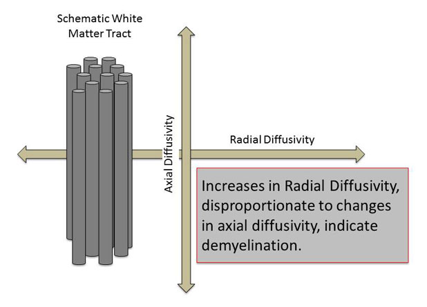 increases in radial diffusity, disproportionate to changes in axial diffusity, indicate demyelination