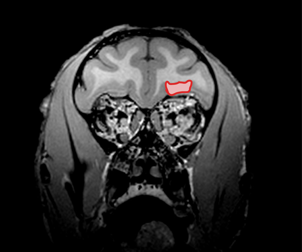 MRI of brain with Orbitofrontal cortex highlighted.