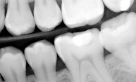 Nanoparticles provide novel way to apply drugs to dental plaque