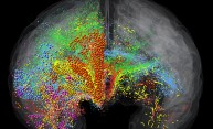 brain scan showing networks in different colors