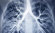 Treatment for fatal lung disease shows promise