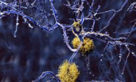 Study: Brain's immune system could be harnessed to fight Alzheimer's