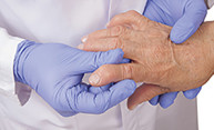 doctor wearing gloves holds an arthritic hand