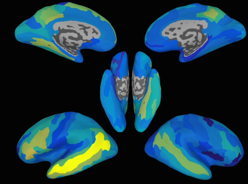 fMRI images of brain scan