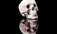 3d model of human skull with bone grafts
