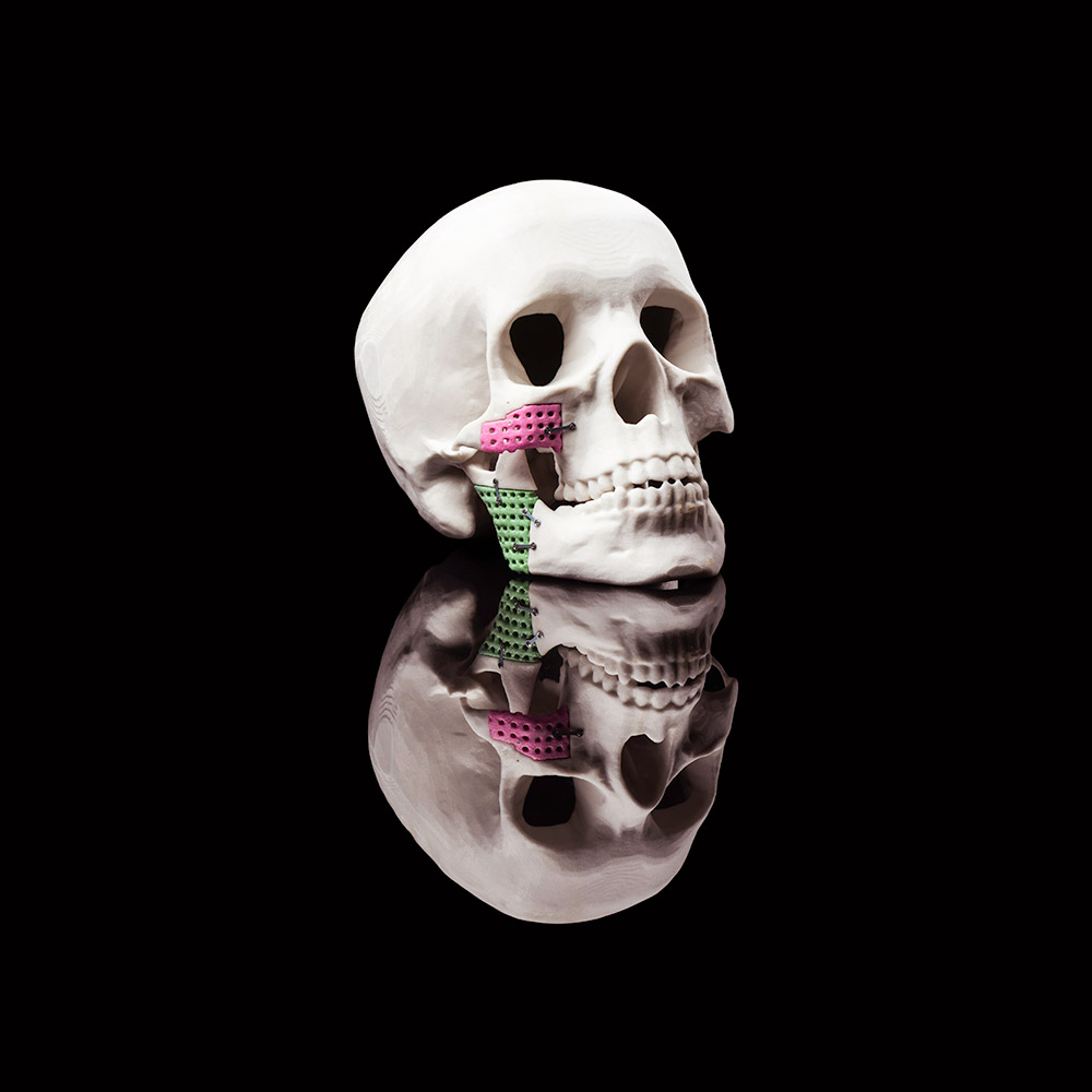 3-D model of a human skull