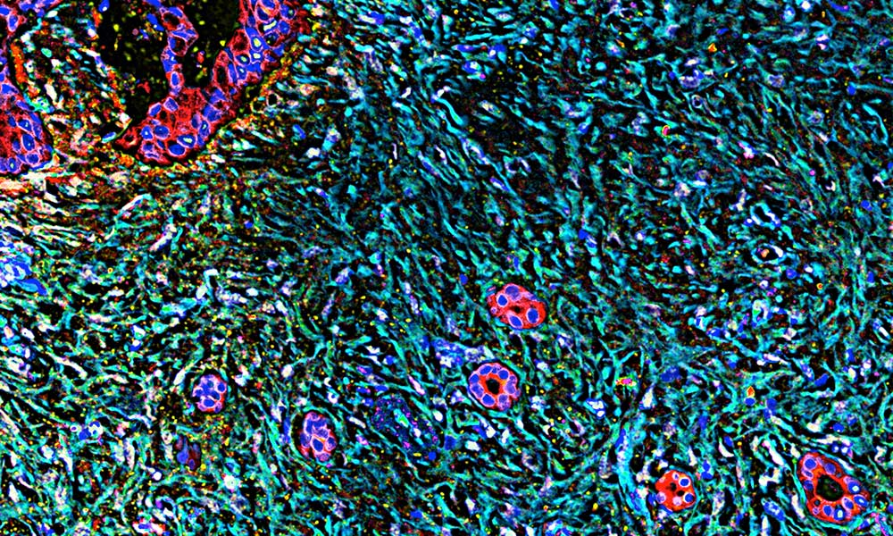 pancreatic cancer cells in cancer tumor