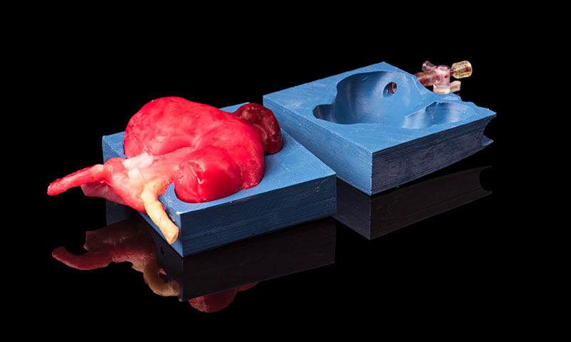 life-size hydrogel cast of an actual patient kidney with attached tumor in its 3D-printed mold