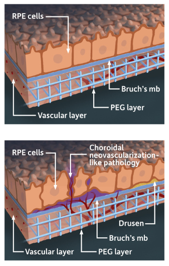 First illustration shows RPE cells, Bruch's mb, PEG layer, and vascular layer; second illustration shows the same but with a choroidal neovascularization-like pathology as well as drusen, or small yellow deposits of fatty protein indicating macular degeneration.